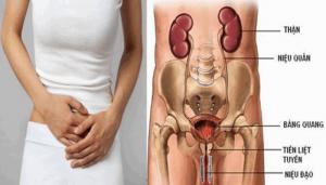 Biểu hiện viêm đường tiết niệu ở nữ giới