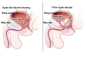 Nguyên nhân viêm tuyến tiền liệt ở nam giới