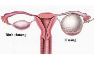 U nang buồng trứng là gì