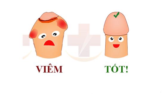 viem-bao-quy-dau