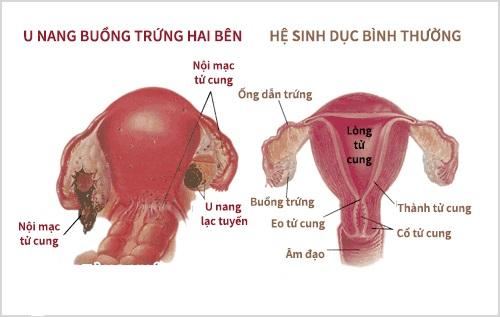 u-nang-buong-trung-2-ben