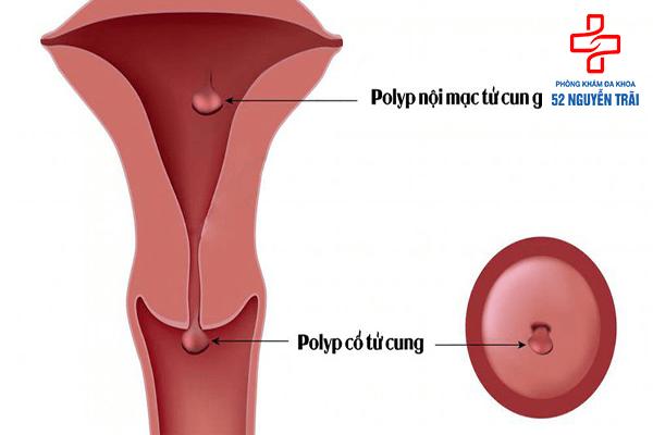 Polyp cổ tử cung có nguy hiểm ko